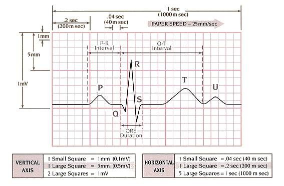شکل ECG و نامگذاری اجزای آن