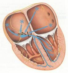 6- فیبریلاسیون دهلیزی (Atrial Fibrillation/ AF)