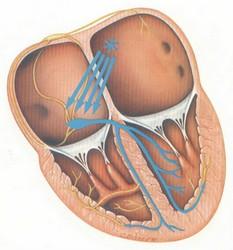4- تاکیکاردی حملهای دهلیزی (Paroxysmal atrial Tachycardia/ PAT)
